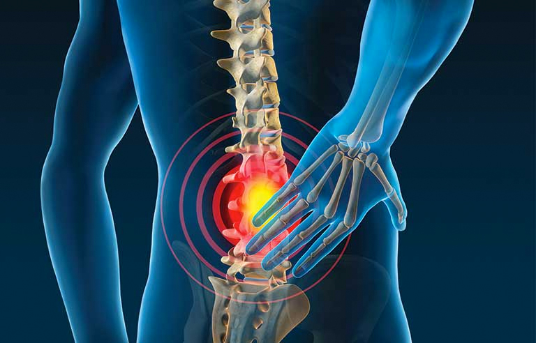 A four-week home-based exercise programme is effective in treating subacute low back pain in adults